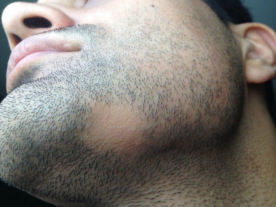 trou dans la barbe