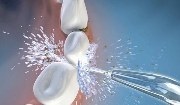 Jet dentaire hydropulseur puissance jet