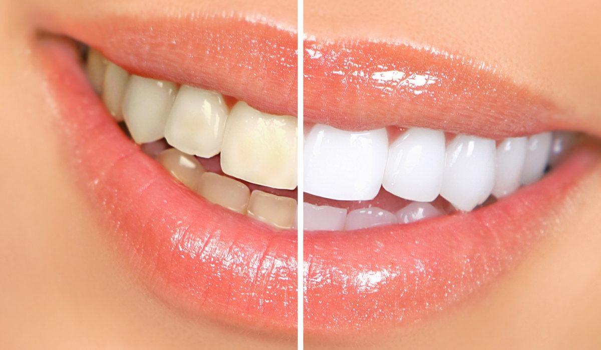 Comment choisir son kit de blanchiment des dents