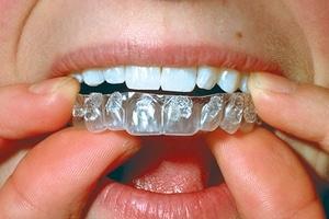 gouttiere blanchiment des dents