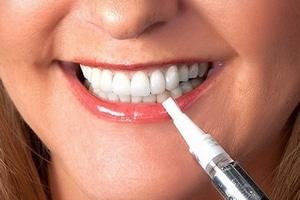 Kit de blanchiment des dents stylo