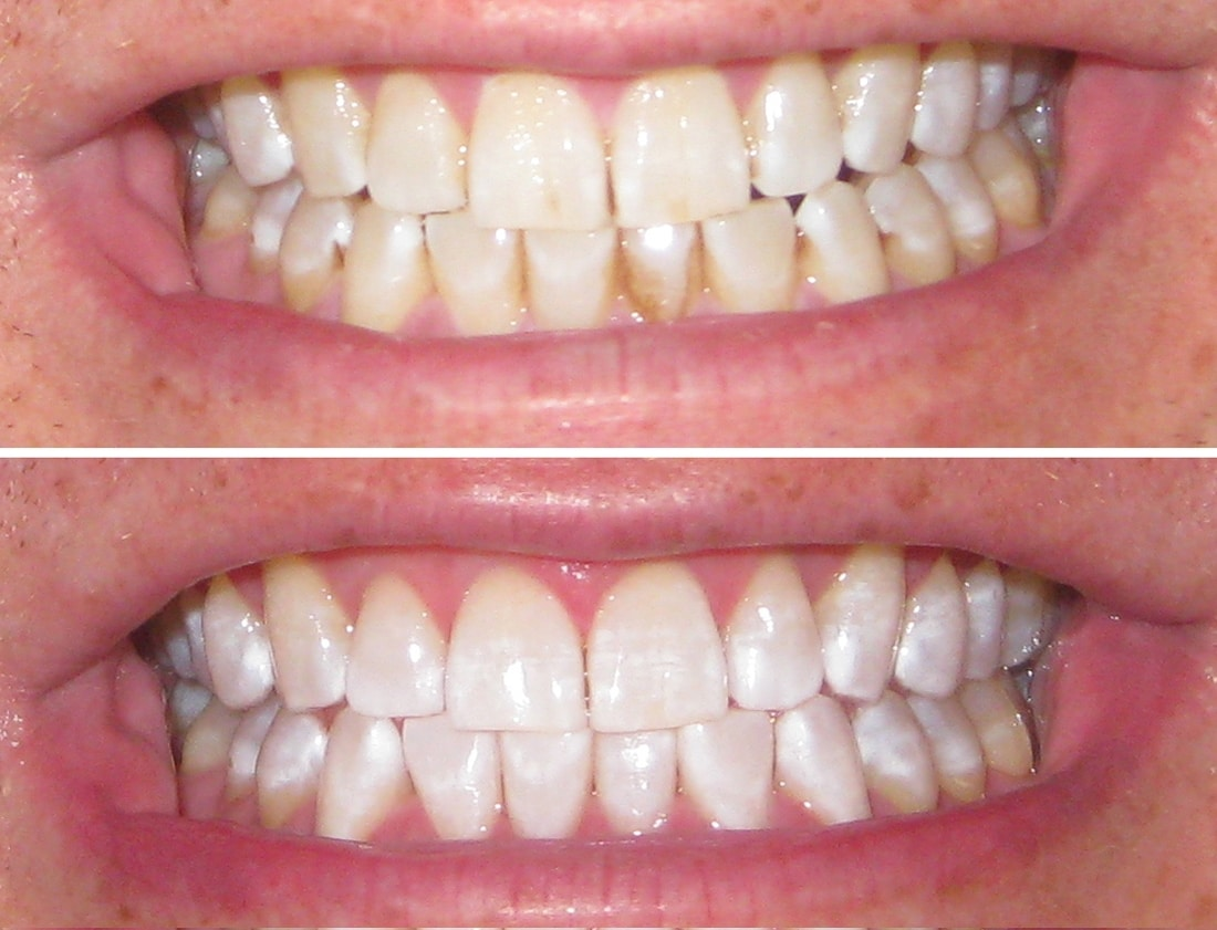 Avis sur le dentifrice blancheur BBryance