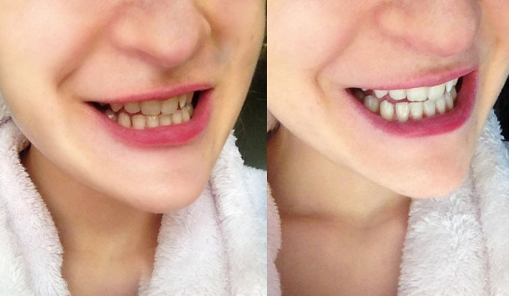 Charbon actif dents blanches