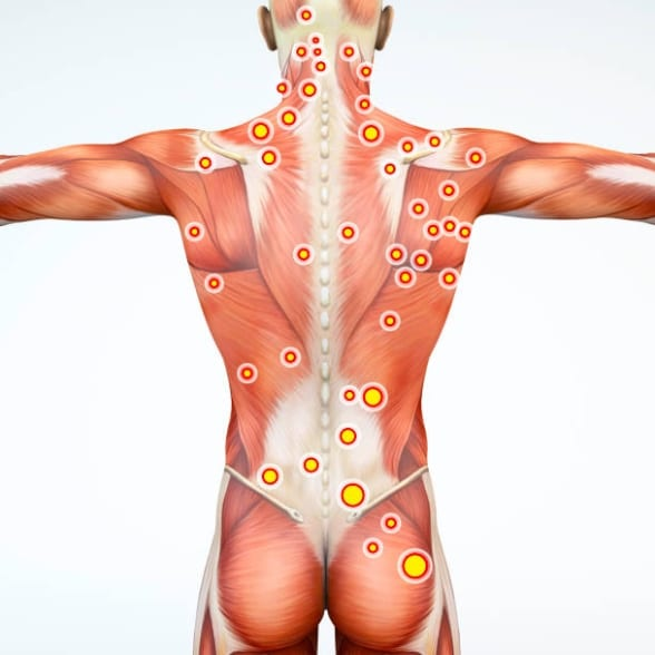 Cartographie trigger points