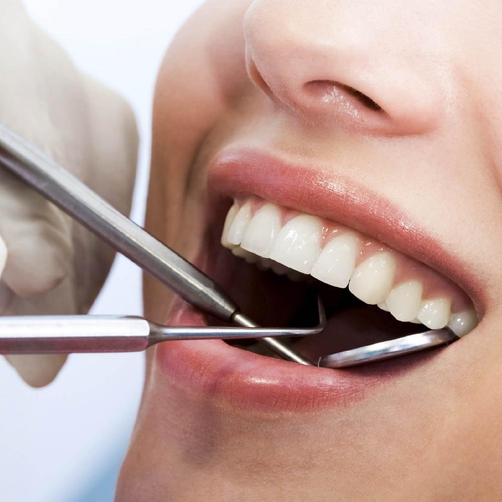 Enlever tartre dents