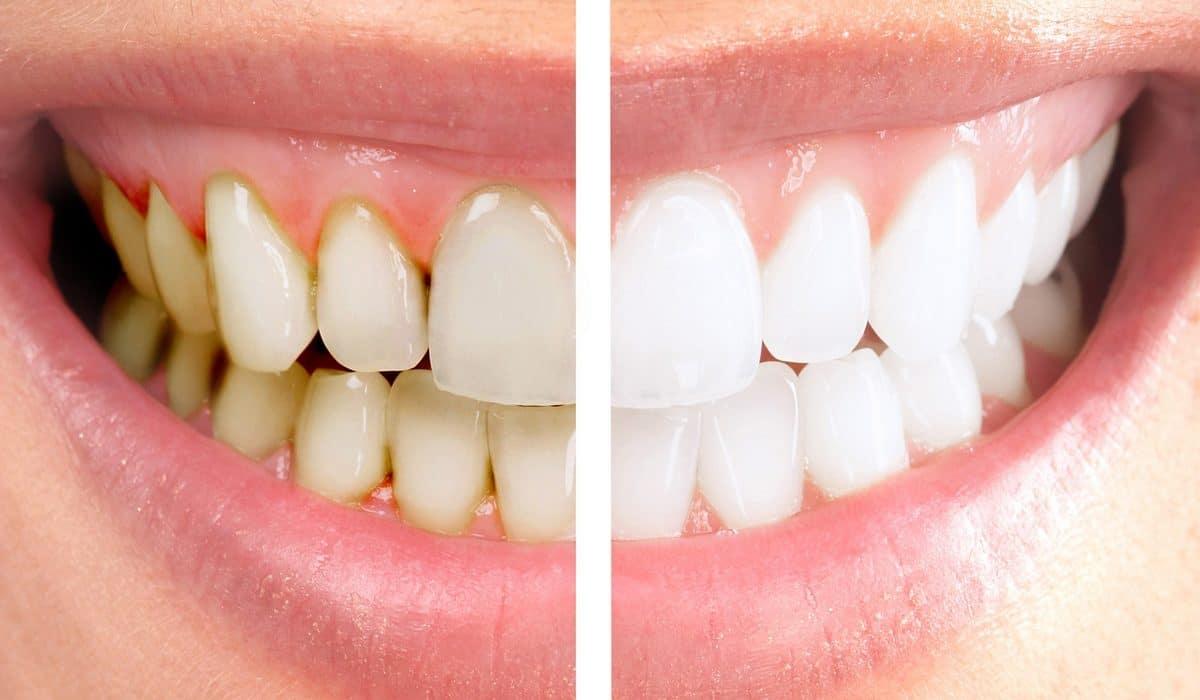 Laver dents pourquoi