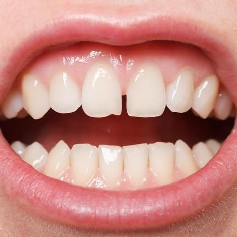 Renforcer dents gencives massage gencives