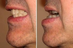 Soigner apnée sommeil orthèse avancée mandibulaire