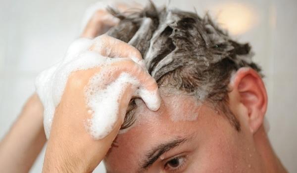 Chute cheveux homme conseils