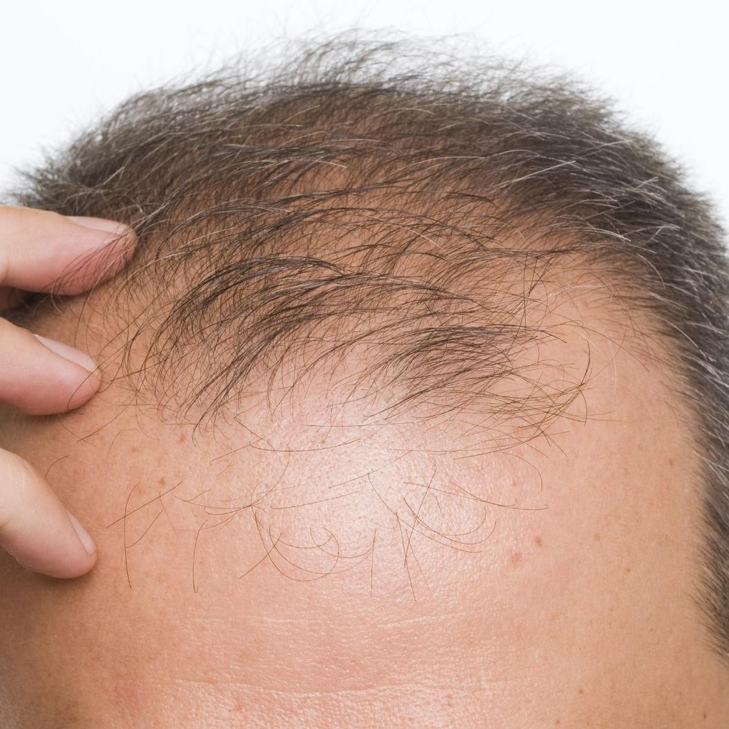 Chute cheveux homme raison