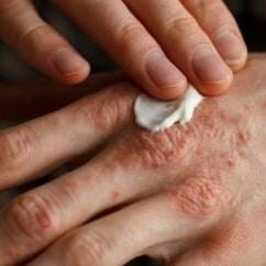 Beurre karité utilisation vergetures eczema rides