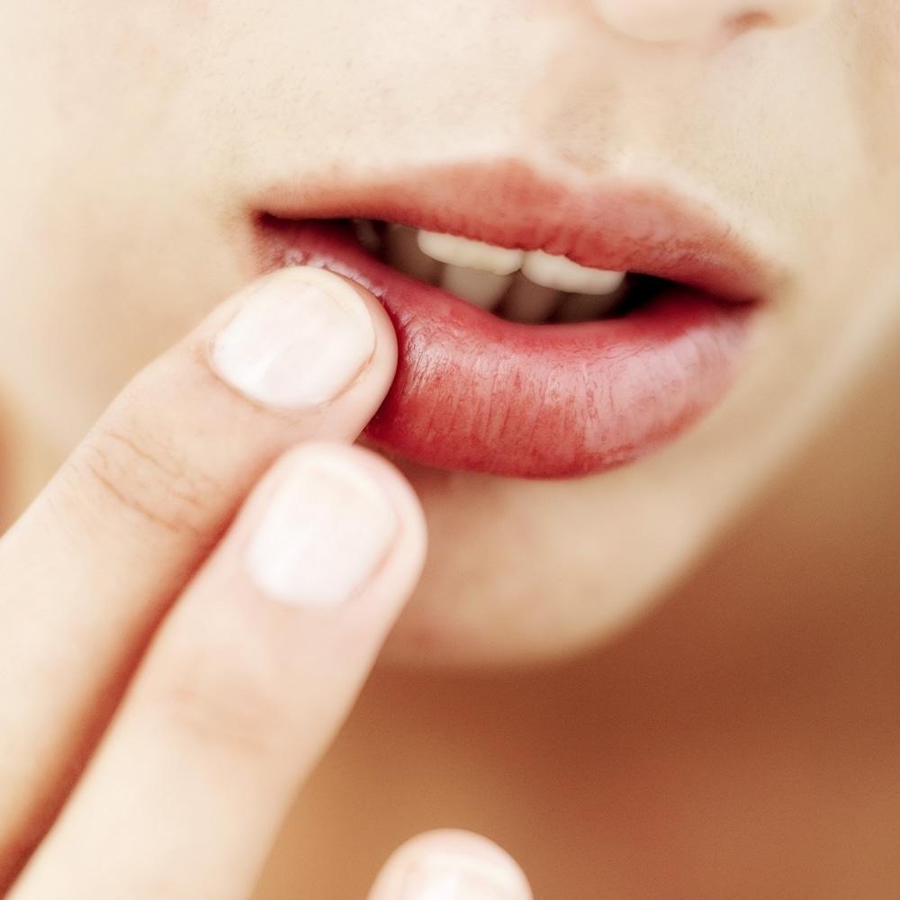 Soigner lèvres gercées